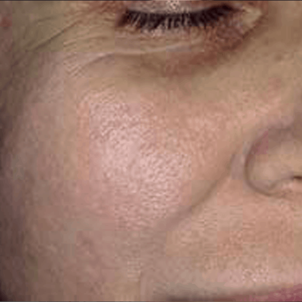 Post-acne-scars-ETCA-after