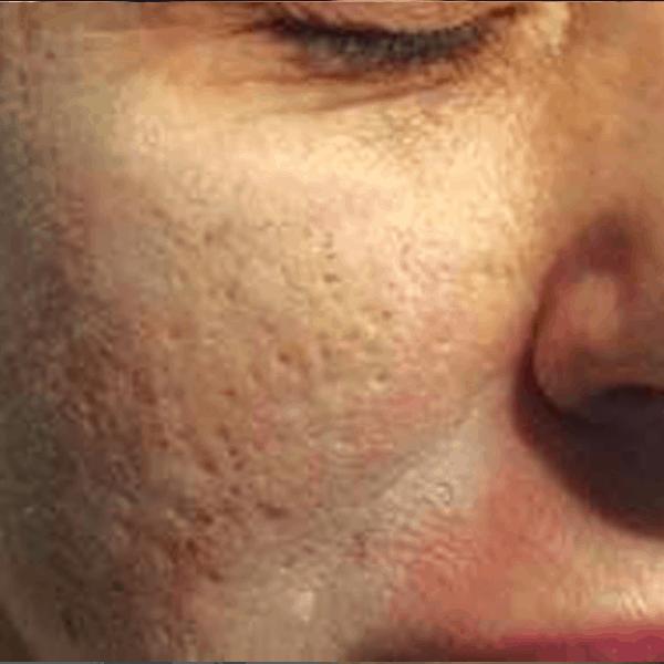 Post-acne-scars-ETCA-before